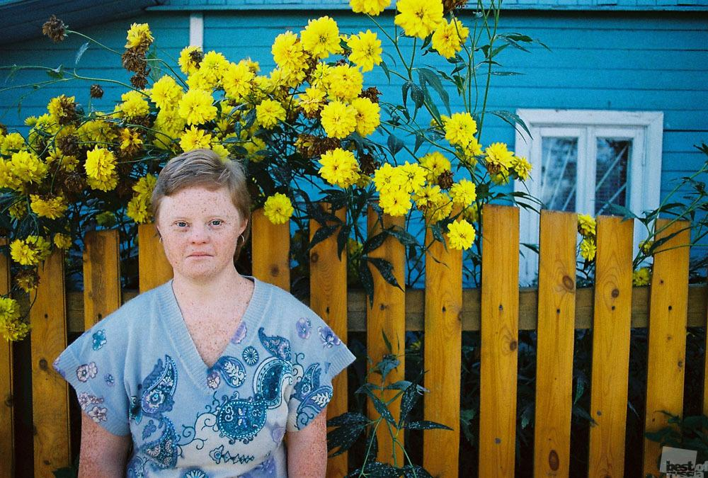 You also need strength to cope with illness (if incurable) // Ira has Down's syndrome, but that doesn't prevent her from living life to the full. Asked why she has so many freckles, she replies that the sun loves her. Priluchi, Vologda region