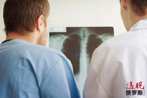 Lung CN